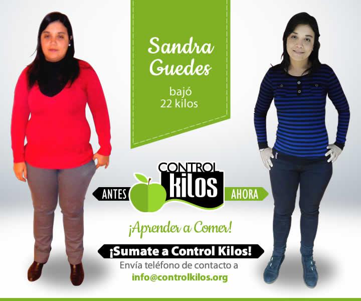 20_Sandra-Guedes-Frente-FB_001antes-despues